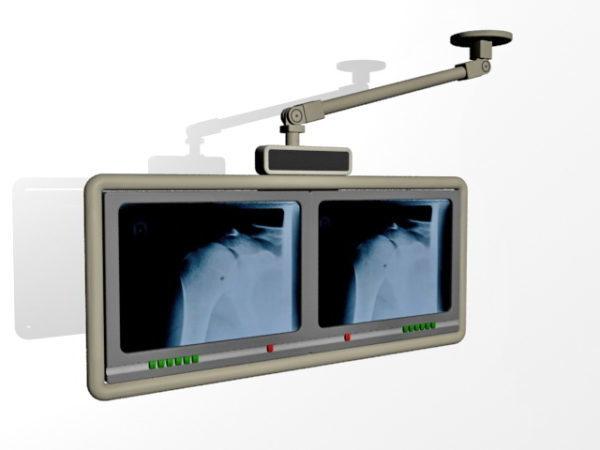 Monitor de diagnóstico de radiología hospitalaria